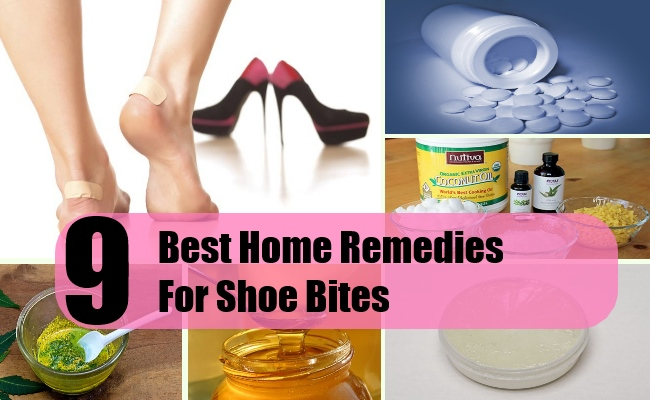 67a1b6a9be 9 Best Home Remedies For Shoe Bites
