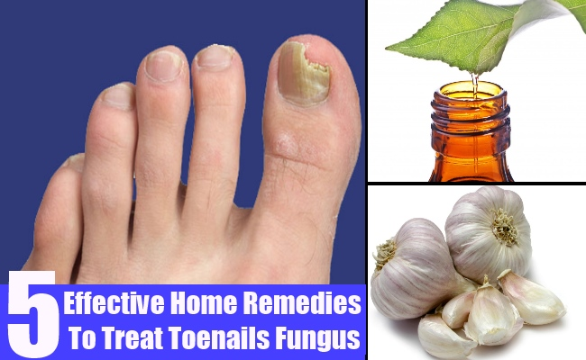 5 Effective Home Remedies To Treat Toenails Fungus