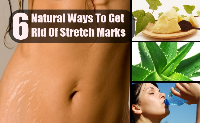 6 Natural Ways To Get Rid Of Stretch Marks