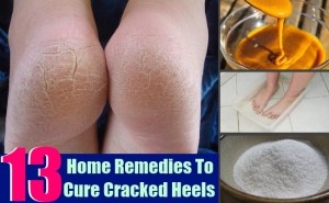 13 Effective Home Remedies To Cure Cracked Heels