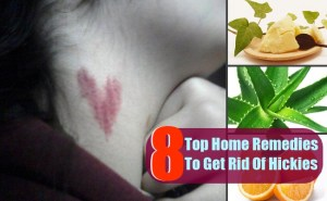 8 Top Home Remedies To Get Rid Of Hickies