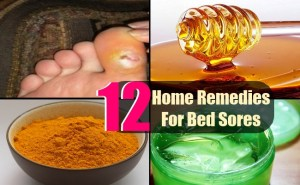 12 Easy Home Remedies For Bed Sores