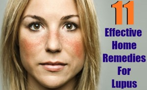 11 Effective Home Remedies For Lupus