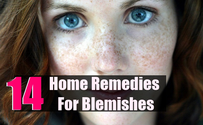14 Best Home Remedies For Blemishes