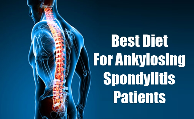 Best Diet For Ankylosing Spondylitis Patients For Alleviating Spine Pain And Stiffness