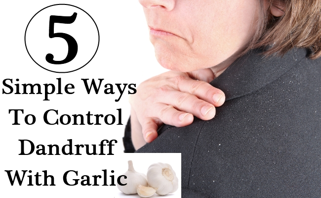 5 Simple Ways To Control Dandruff With Garlic