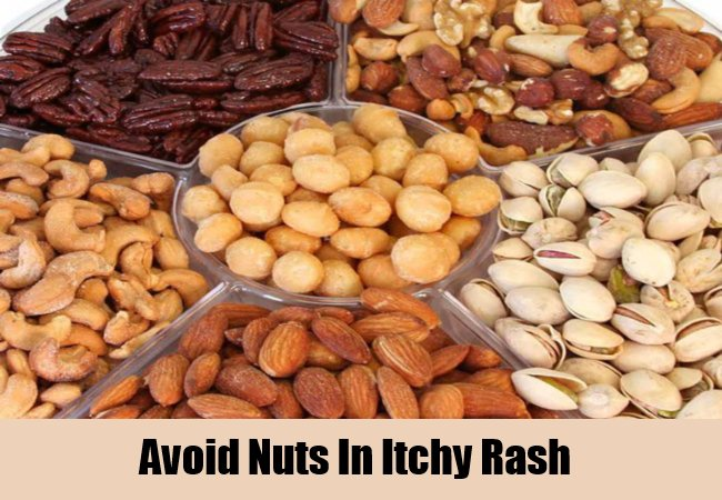 avoid-nuts-in-itchy-rash