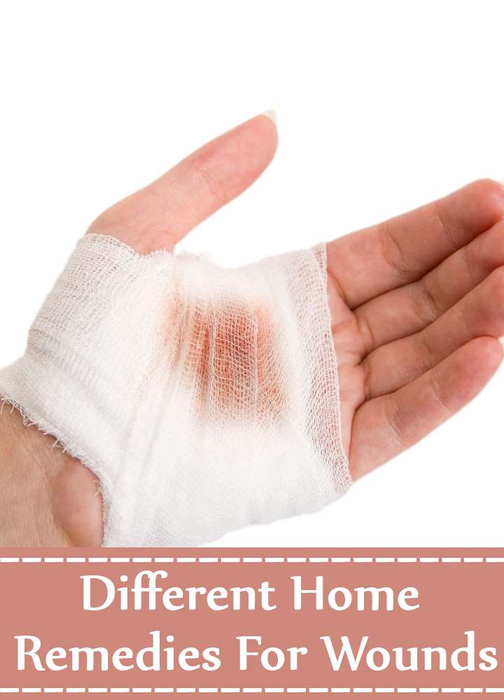 Different Home Remedies For Wounds
