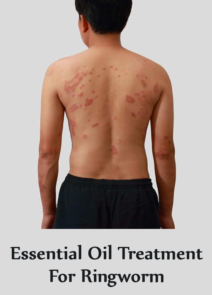 Essential Oil Treatment For Ringwormv