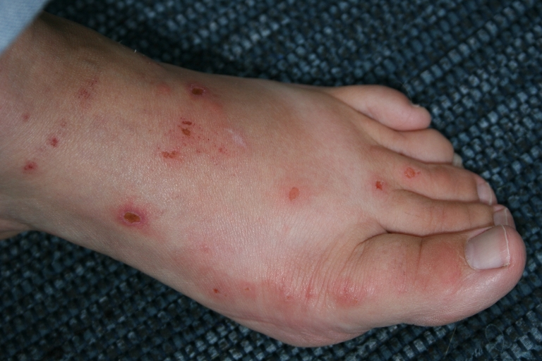 11 Excellent Home Remedies For Poison Ivy Rash