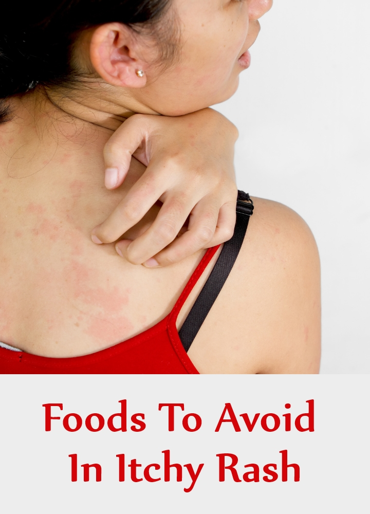 Foods To Avoid In Itchy Rash