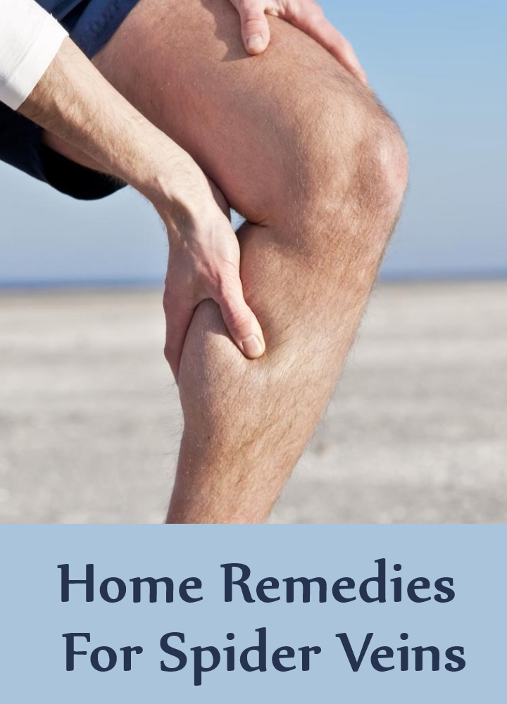Home Remedies For Spider Veins