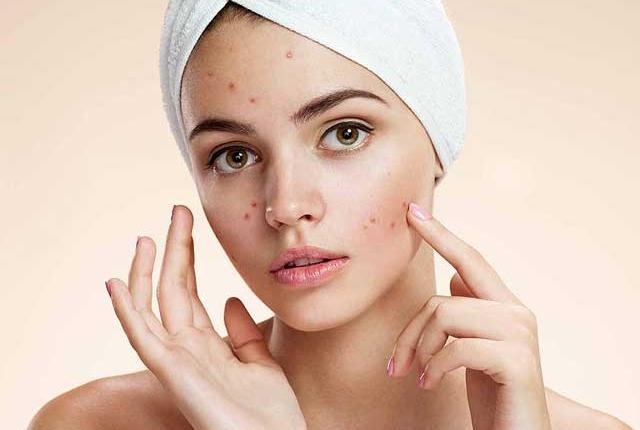 It Reduces Acne