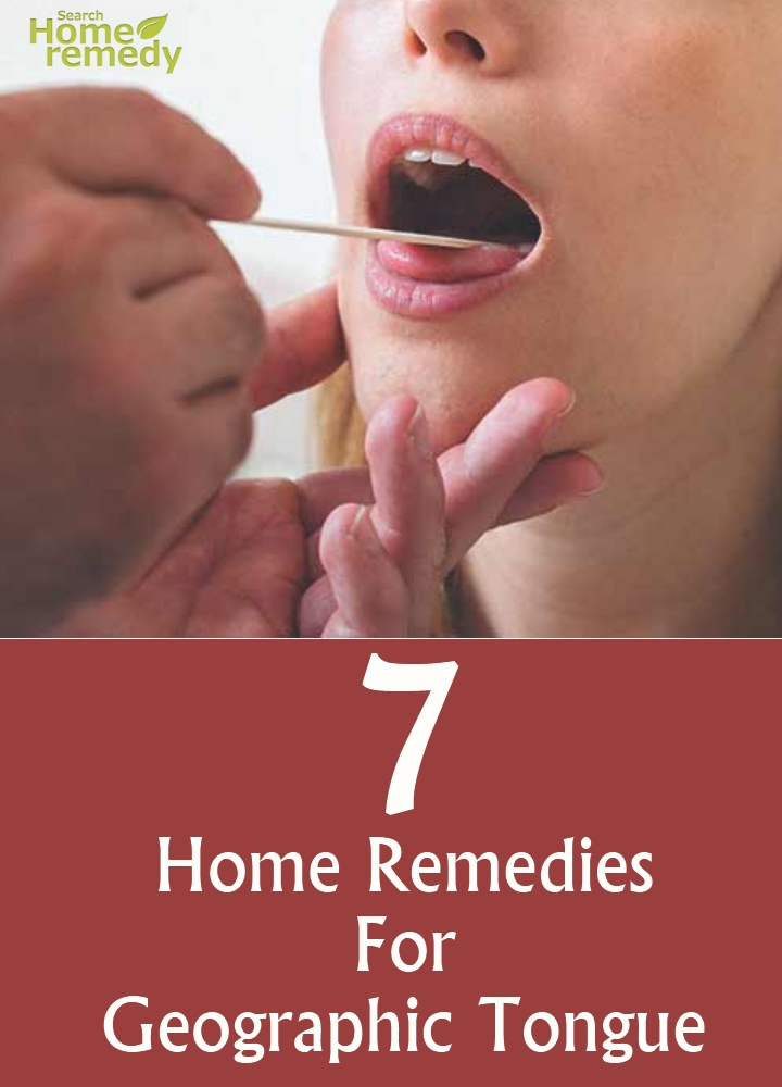 Home Remedies For Geographic Tongue