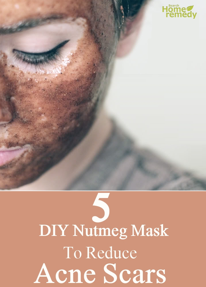 Nutmeg Mask To Reduce Acne Scars