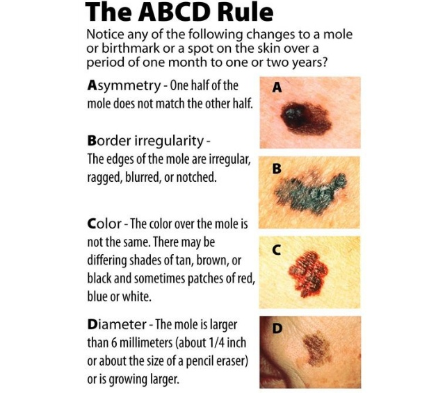 The ABCDE Rule For Moles