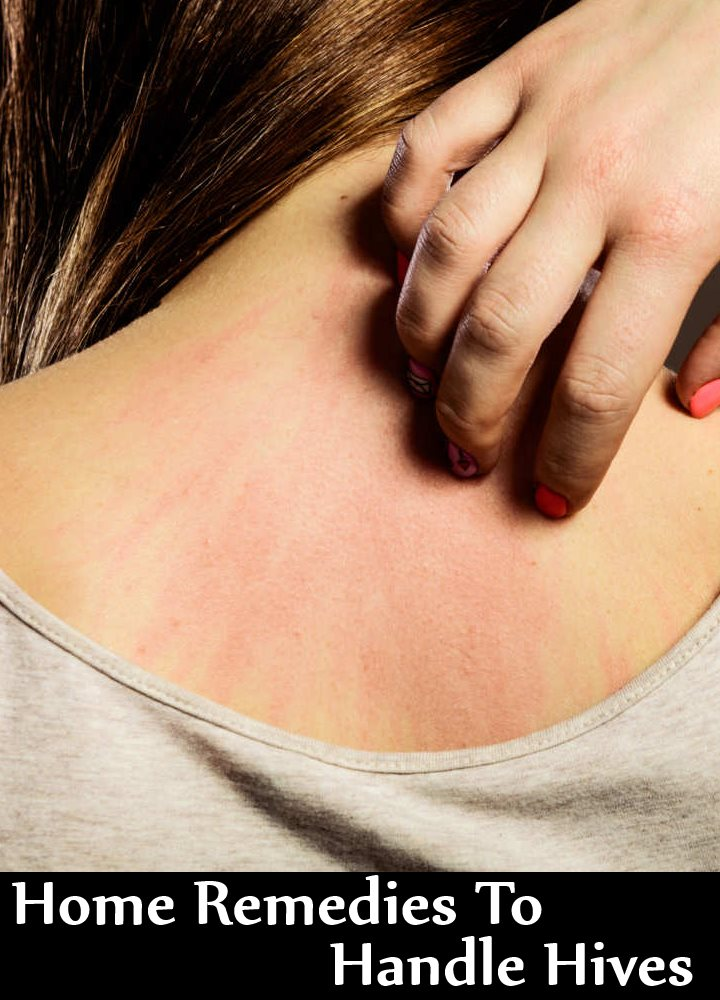 7 Home Remedies To Handle Hives