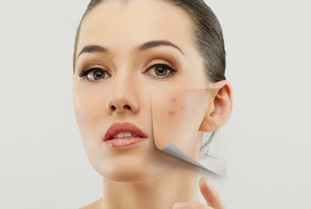 Wrinkle Free Skin