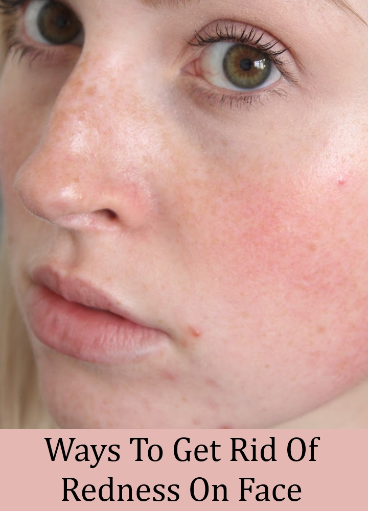 Ways To Get Rid Of Redness On Face