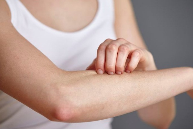 Increased And Recurrent Skin Rashes, Allergies