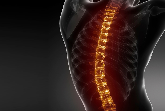 Spine Curvature Disorder