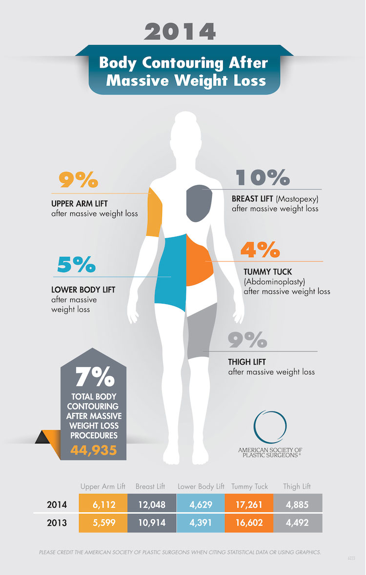 Plastic surgery infographic image - Search Influence