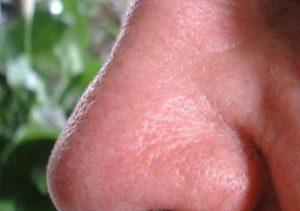 Perde il naso, glielo coltivano con uno stampo sul braccio