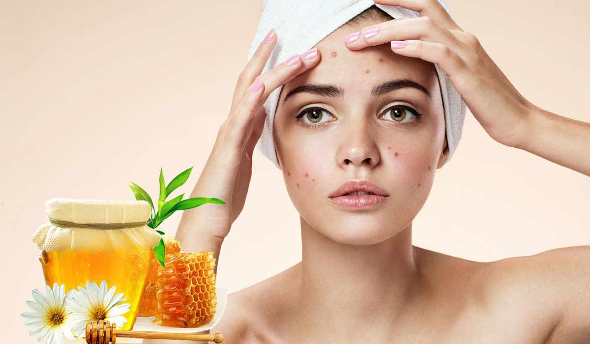ماسك العسل للوجه الدهني أفضل طرق علاج حب الشباب للبشرة الدهنية
