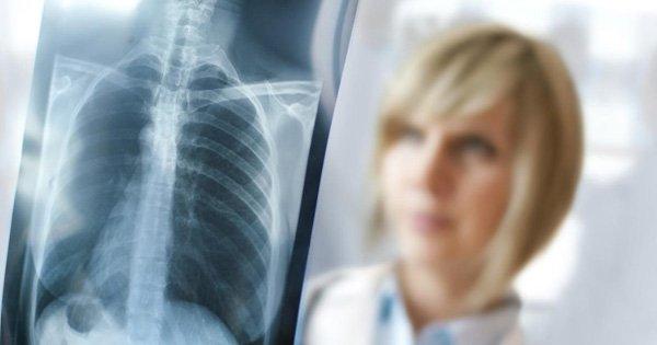 Cómo reducir los efectos de los rayos X médicos