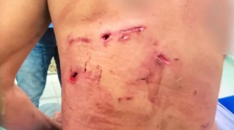 Homem de 58 anos é atacado por onça-pintada