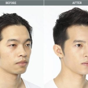 semestafakta-korean Eyelid surgery4