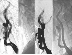 angioplastia_colocacion_stent