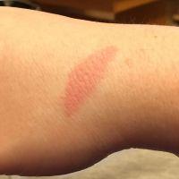 Außerdem am Ofen verbrannt ich Depp  - via Instagram