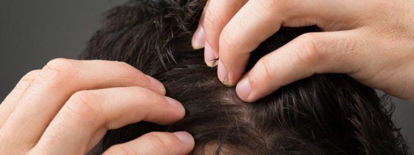 peptidi- capelli
