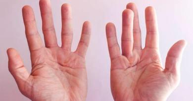 Malattia di Dupuytren: addio alla chirurgia, basta un'iniezione