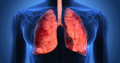 Malattia polmonare da micobatteri non tubercolari (NTM– LD): difficile da pronunciare, difficile da curare.