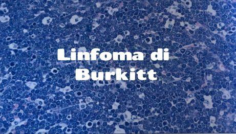 il Linfoma di Burkitt [ il primo tumore umano associato ad un virus