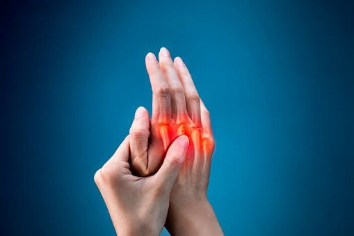 Artrite reumatoide: sintomi, diagnosi, trattamento