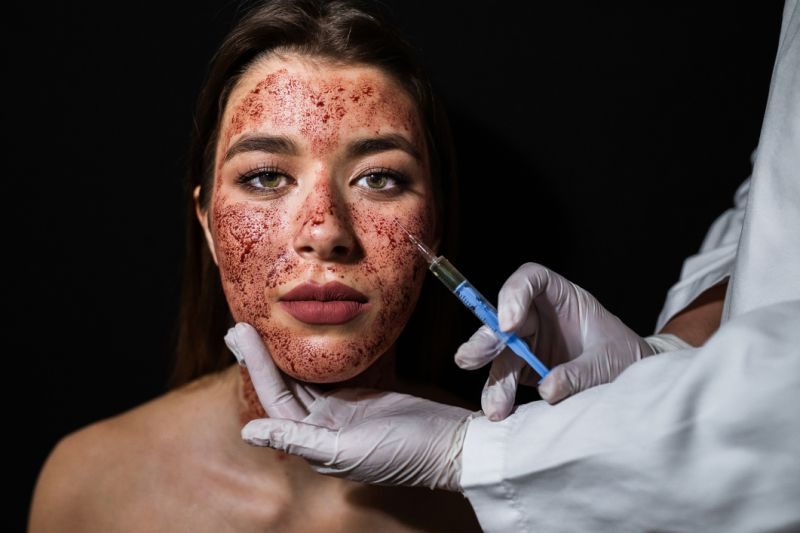 Vampire Facial & Other Bizarre Beauty Treatments To Try This Spring