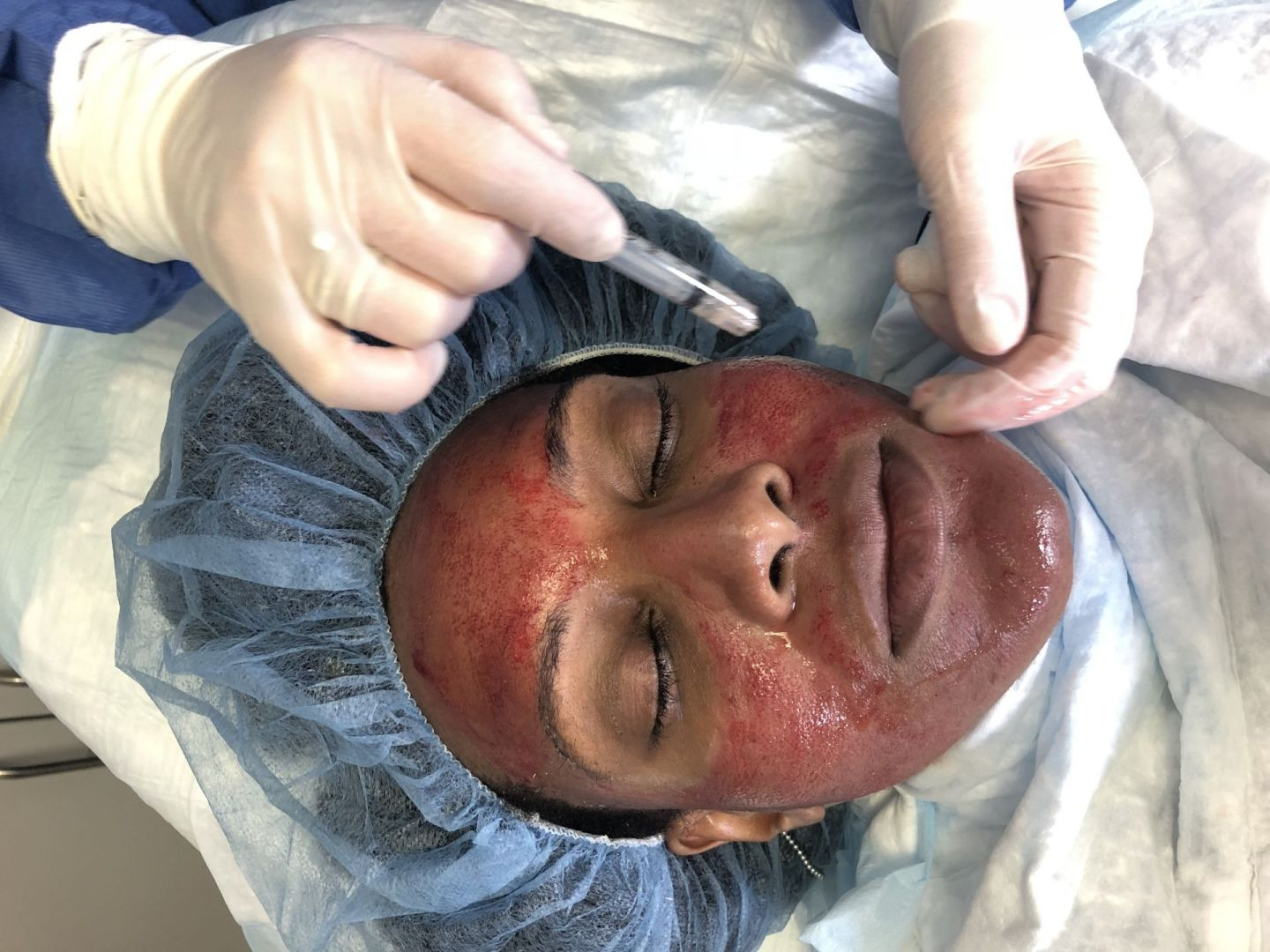 Vampire Facial may sound dangerous and expensive, but it is far from alone in the bizarre when it comes to popular beauty treatments. Check out what's hot.