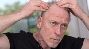 Chute de cheveux cause et traitement
