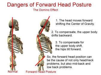 Neck pain forward head posture
