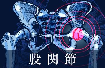 人工股関節置換術後とMRI
