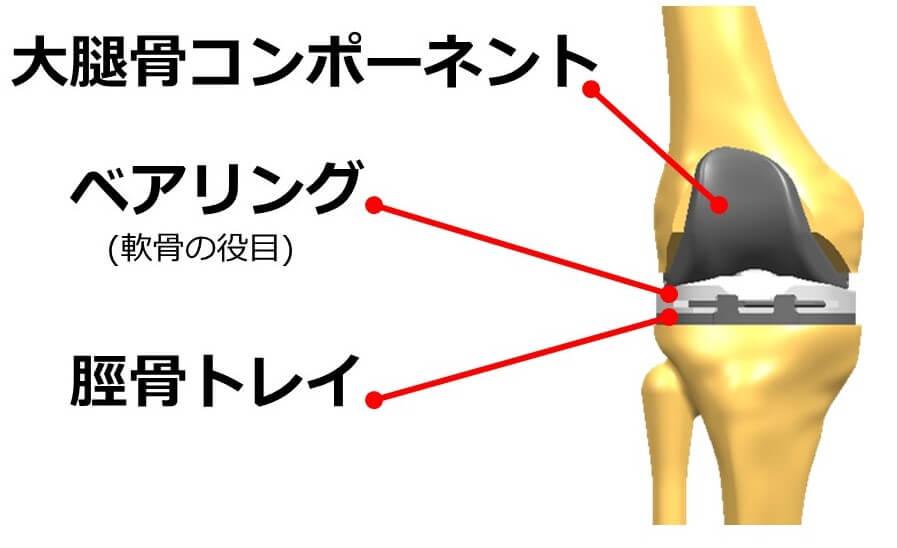 人工膝関節のインプラントの重量