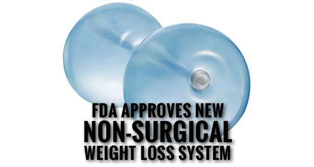 FDA Approves Non-Surgical ReShape Dual Balloon System for Weight Loss