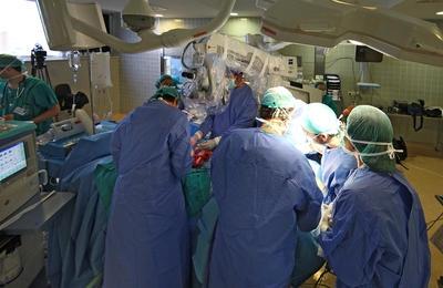 transplante-facial2