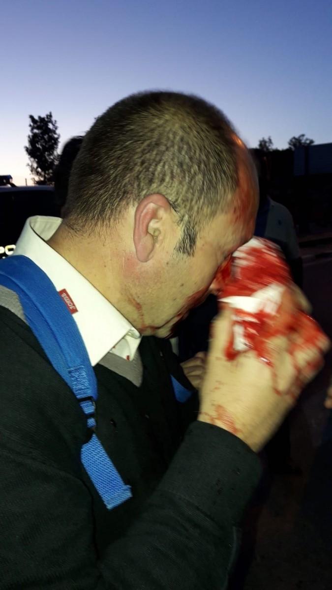 Uno de los funcionarios heridos.