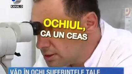 ochiulcaunceas
