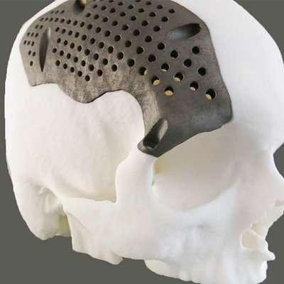 Titanium - 3D Printing
