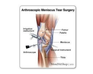 Arthroscopic-Meniscus-Tear-Surgery